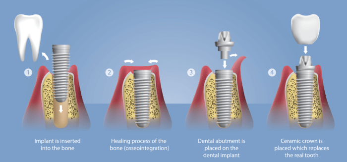 Osseointegration Implants Market Procedural Development By Technology, Techniques and Trends | EZ Articles DB